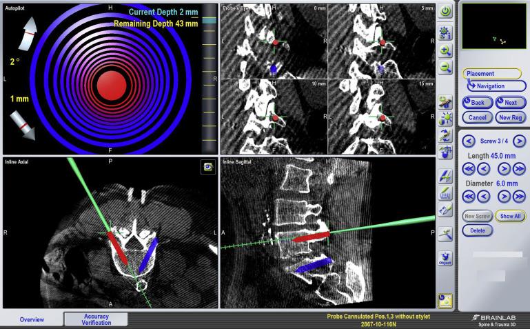 Spine Navigation Based on 3-Dimensional Robotic Fluoroscopy