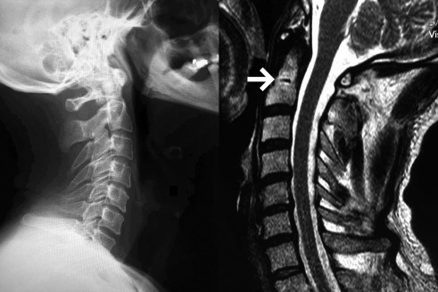 Unexpected Persistent Dentocentral Synchondrosis Of C2 Sciencedirect This cartilaginous structure is continuous throughout the vertebral body with similar cartilage in both the. unexpected persistent dentocentral