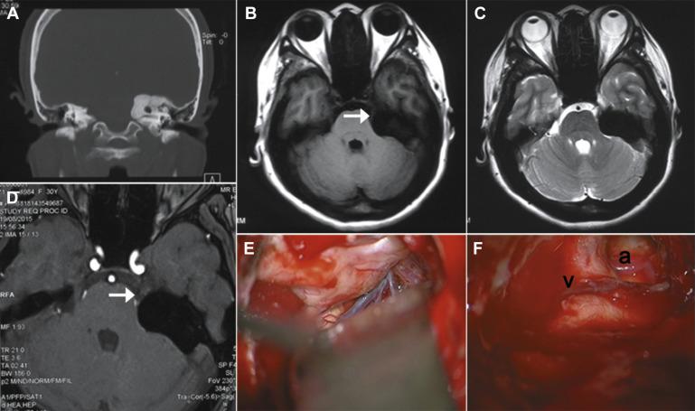 Trigeminal Neuralgia Secondary to Osteoid Osteoma of the
