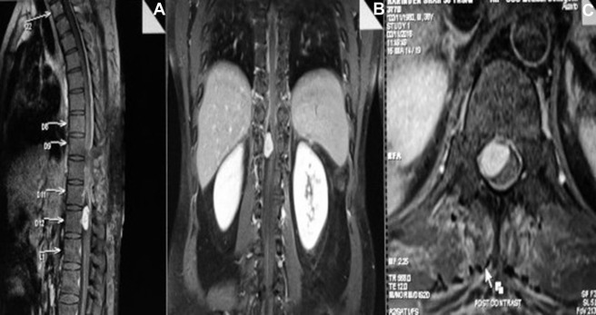 Lessons Learned from a Migratory Intradural Extramedullary