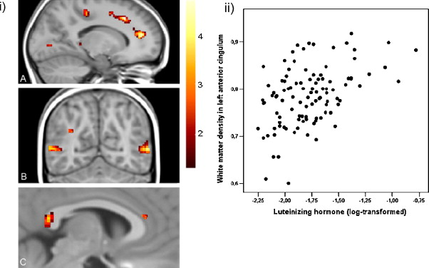 White matter development in adolescence: The influence of puberty