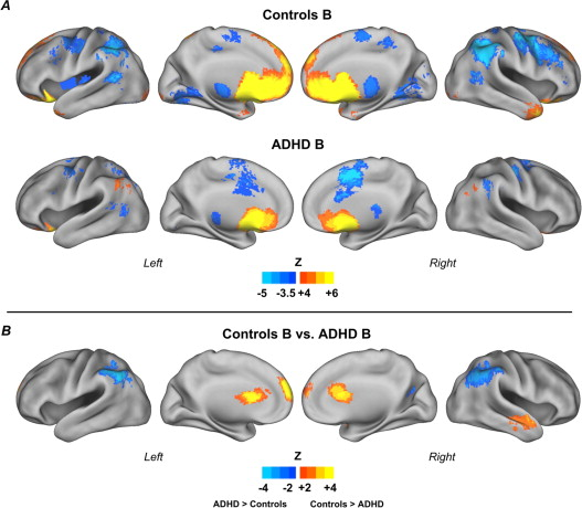 Connectivity Maps For The Reward ROI Subgroup B Results Control Children N 29 And With ADHD 17 A Direct Comparison Between