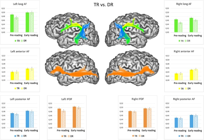 Early Brain Connections Key To Reading >> Early Dynamics Of White Matter Deficits In Children Developing