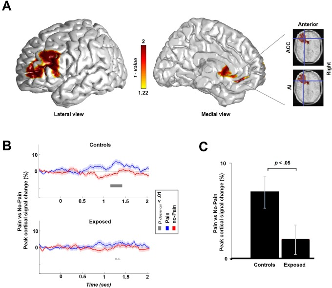 Chronic trauma impairs the neural basis of empathy in mothers