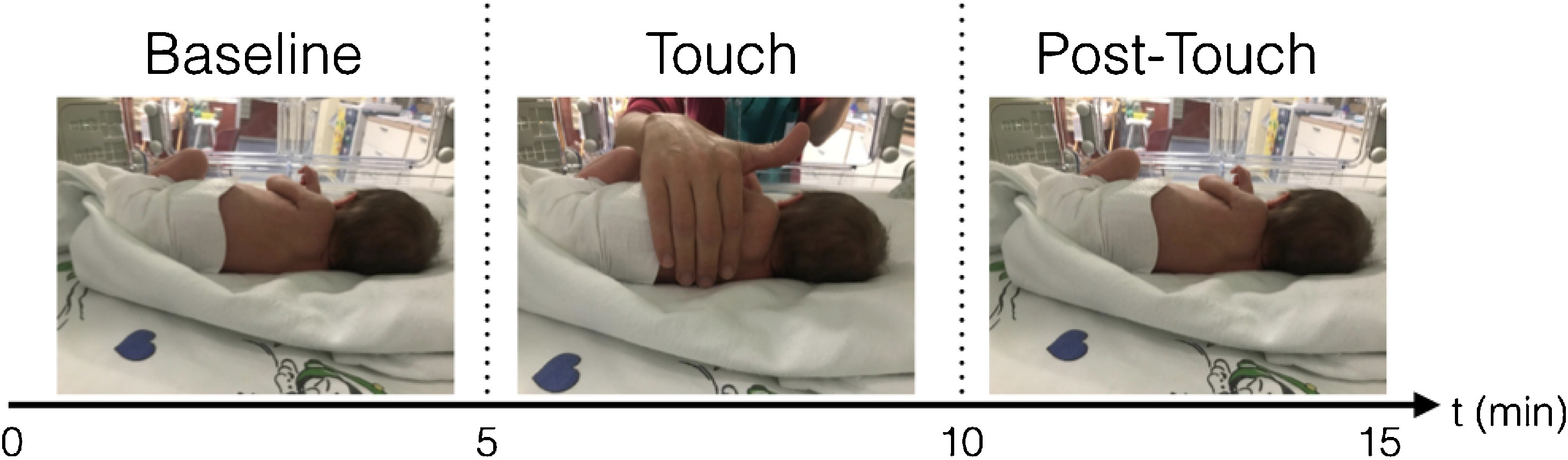 Carezza riduce lo stress e aiuta i neonati prematuri