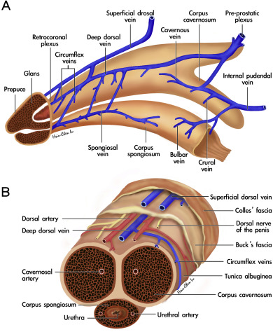 Penile Venous Surgery For Treating Erectile Dysfunction Past