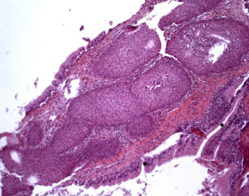 sinonasal inverted papilloma