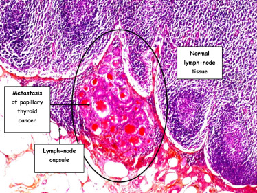 cancer metastatic to lymph nodes