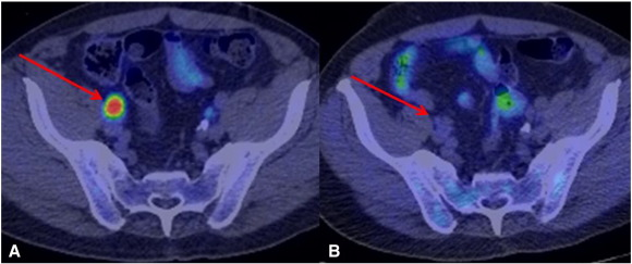 pet ct psma prostate cancer