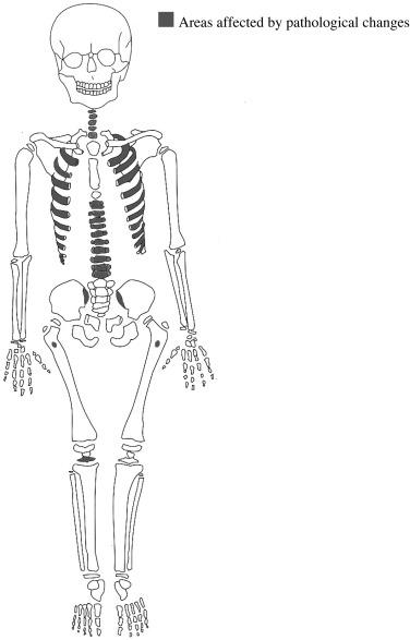 Diagnosing A Possible Case Of Juvenile Idiopathic Arthritis A