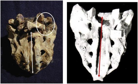 The paleoepidemiology of Sacral Spina Bifida Occulta in