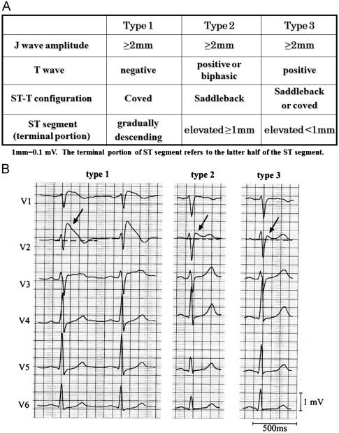ECG Interpretation In Brugada Syndrome ScienceDirect Delectable Ecg Pattern