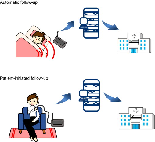 Remote monitoring of cardiovascular implantable electronic