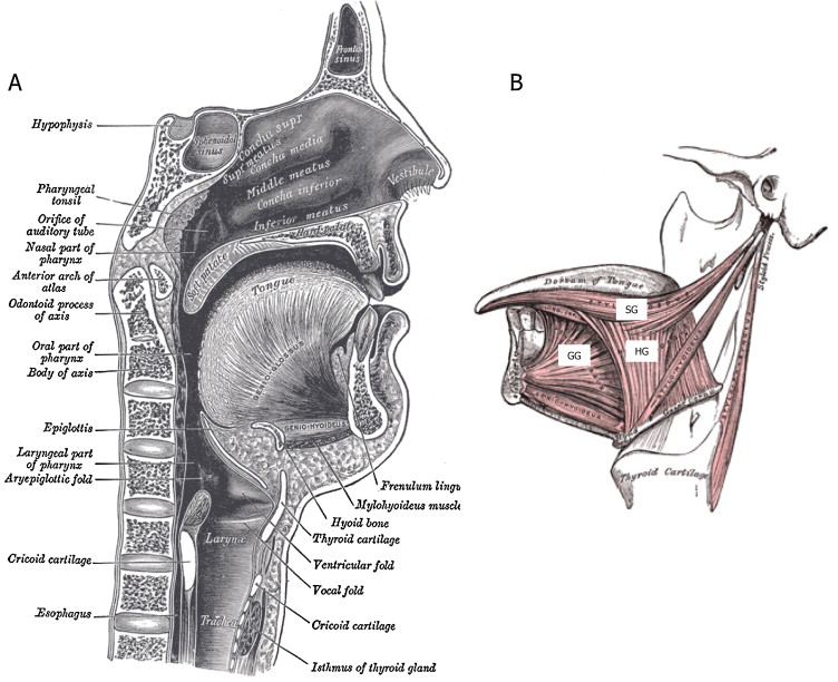 Tongue and upper airway function in subjects with and without ...