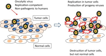 Presage of oncolytic virotherapy for oral cancer with herpes simplex