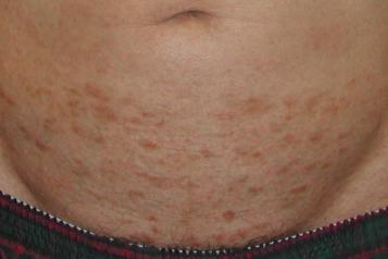 Allergic contact dermatitis caused by titanium screws and