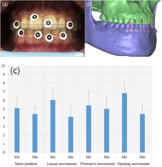 A digital approach to dynamic jaw tracking using a target