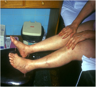 toate articulațiile sunt foarte dureroase ce să facă artroza de gradul I al articulației umărului