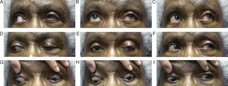 oftalmoplejia externa diabetes mellitus