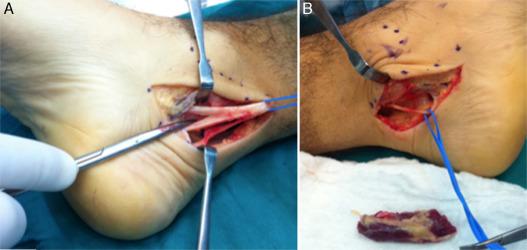 Síndrome del túnel del tarso posterior bilateral por músculo flexor ...