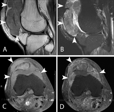 metastatic cancer knee pain)