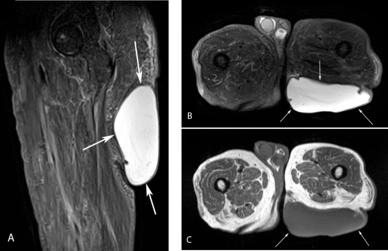 Giant epidermal cyst of the gluteal region - ScienceDirect