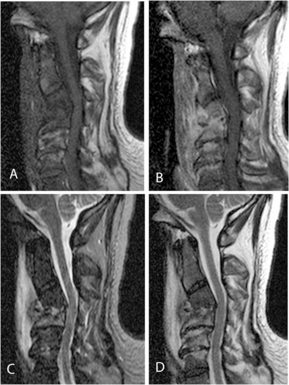 Cervical spine spondylodiscitis mimicking teardrop fracture ...