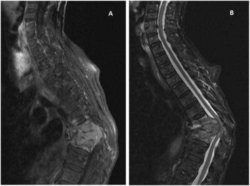 Follicular thyroid carcinoma presenting as acute cord compression ...