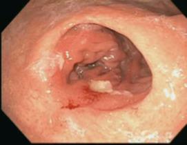 Prospective Diagnosis Of Marginal Ulceration Following Roux En Y