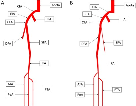 Hypoplastic superficial femoral artery combined with connection of ...