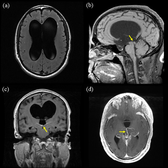 Obstructive hydrocephalus due to aqueductal stenosis from ...