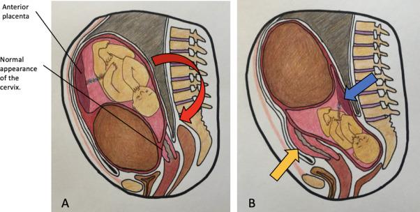 Uterus complications retroverted pregnancy Retroverted uterus