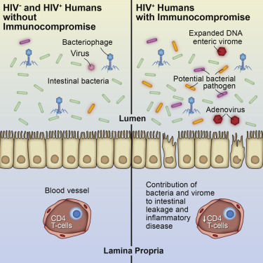 list three causes of acquired immunodeficiency syndrome