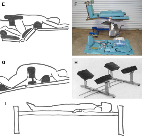 Risks and Benefits of Patient Positioning During Neurosurgical Care ...