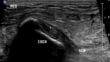 Ultrasound Guided Ischial Bursa Injection Technique And