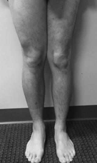sarcoma cancer thigh)