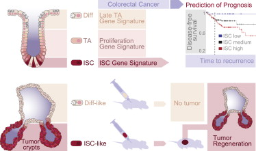 The Intestinal Stem Cell Signature Identifies Colorectal Cancer Stem Cells And Predicts Disease Relapse Sciencedirect