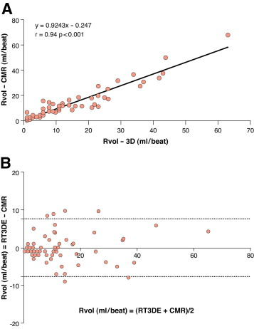 Quantification of Functional Mitral Regurgitation by Real