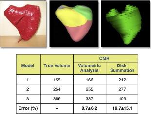 Multimodality Comparison of Quantitative Volumetric Analysis