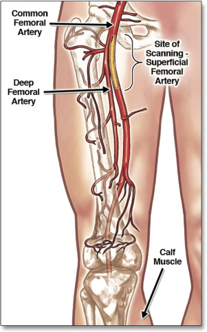Superficial Femoral Artery Plaque And Functional Performance In