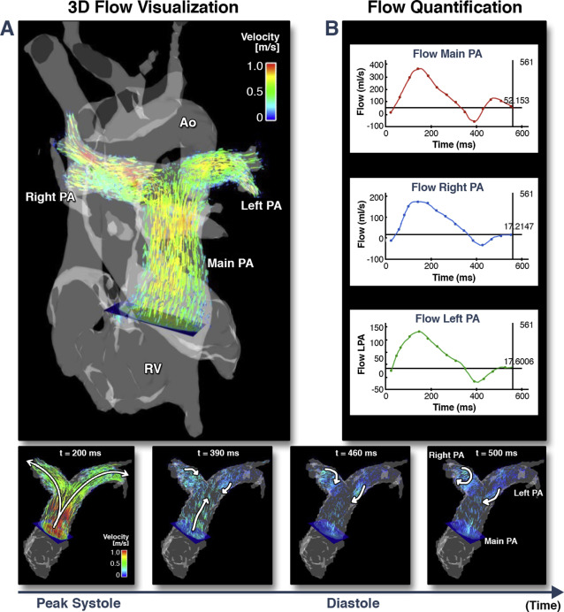 MR and CT Imaging for the Evaluation of Pulmonary