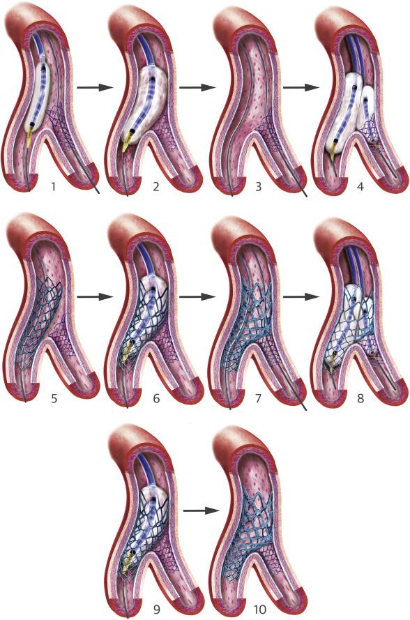 Contemporary Approach To Coronary Bifurcation Lesion Treatment Sciencedirect