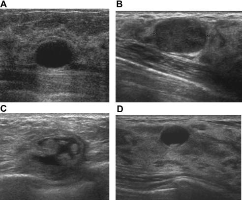 Benign Breast Lesions Ultrasound Sciencedirect