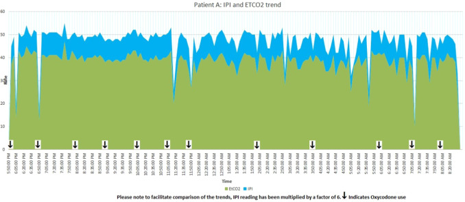 Post operative capnostream monitoring in patients with