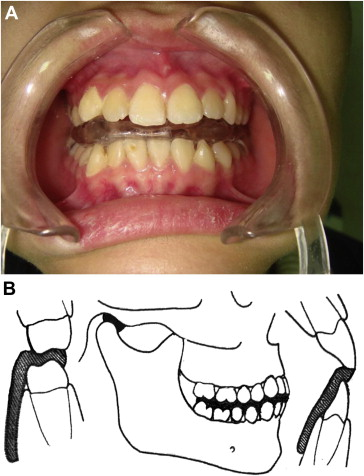 Modified Mandibular Splint Therapy For Disc Displacement With