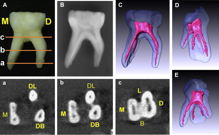 A Study On The Root Canal Morphology Of Primary Molars By High