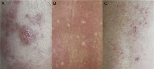 Clinical significance of skin rash in dengue fever: A focus