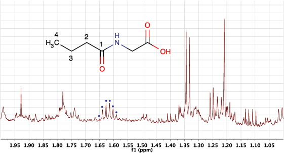A Guide To The Identification Of Metabolites In Nmr Based