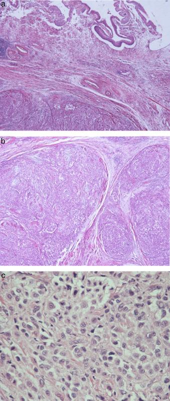 neoplasia maligna primaria de la prostata