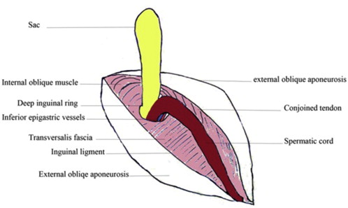 A Hernias of anal on the male outside of